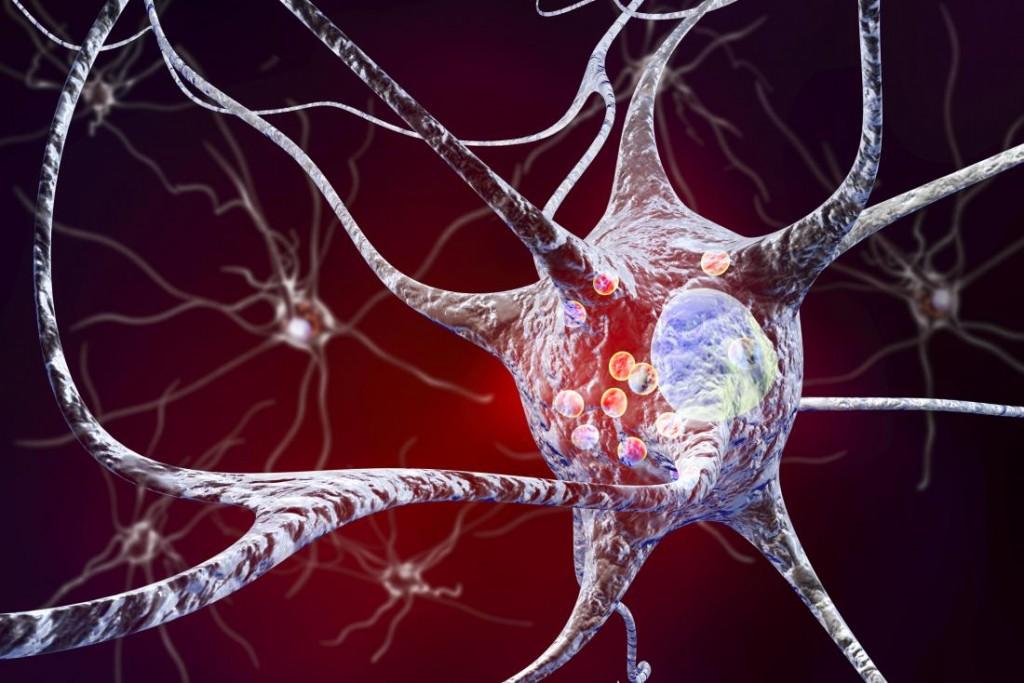 Parkinson kórral ferőzött neuronok